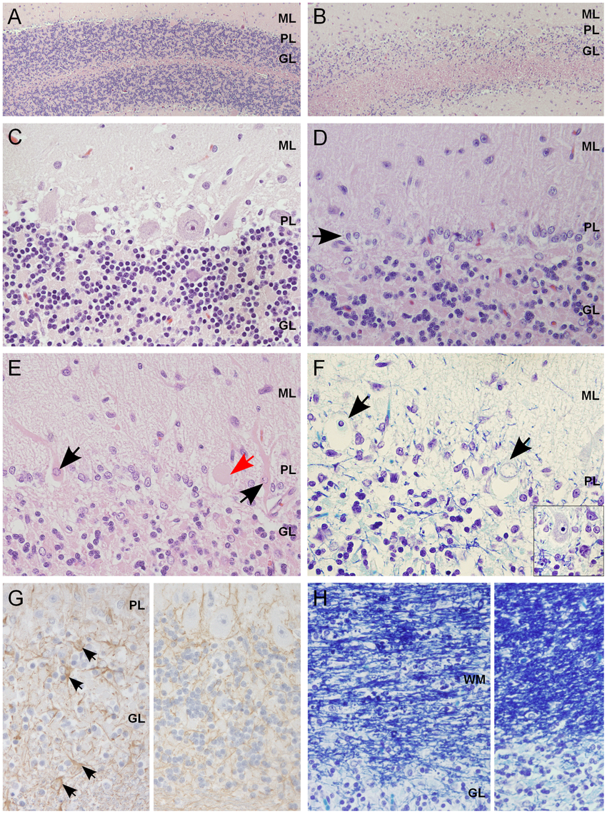 Histological findings within the cerebellar cortex of affected dogs.