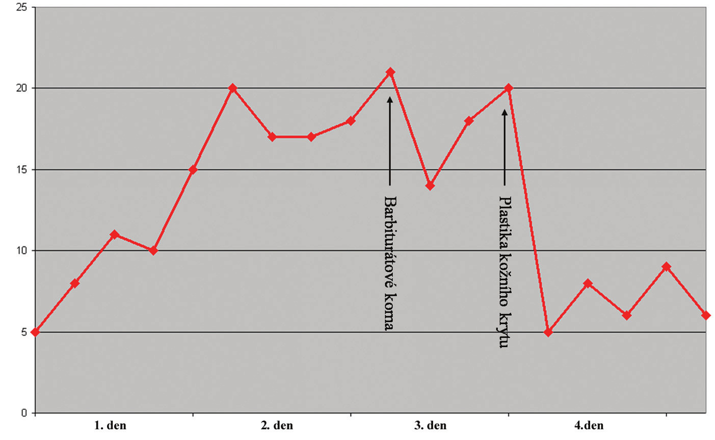 Graf se záznamem hodnot nitrolebního tlaku. Hodnoty tlaku jsou v mm Hg Fig. 4. Graph of the recorded intracranial pressure values in mm Hg