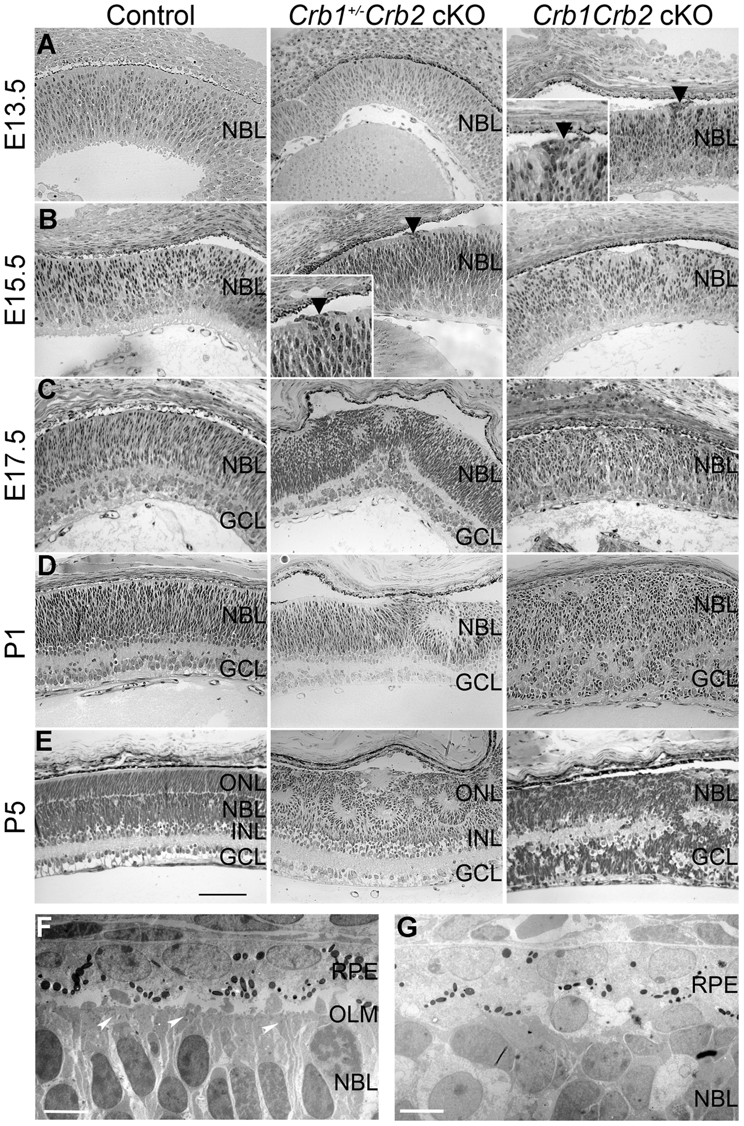 Retinal development is impaired in <i>Crb1Crb2</i> cKO.