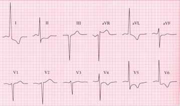 EKG u chronické aortální regurgitace ukazuje těžkou hypertrofii levé komory (tj. zvýšené voltáže a abnormality ST-T-typu strainu v laterálních svodech. Osa QRS ve frontální rovině směřuje doleva.