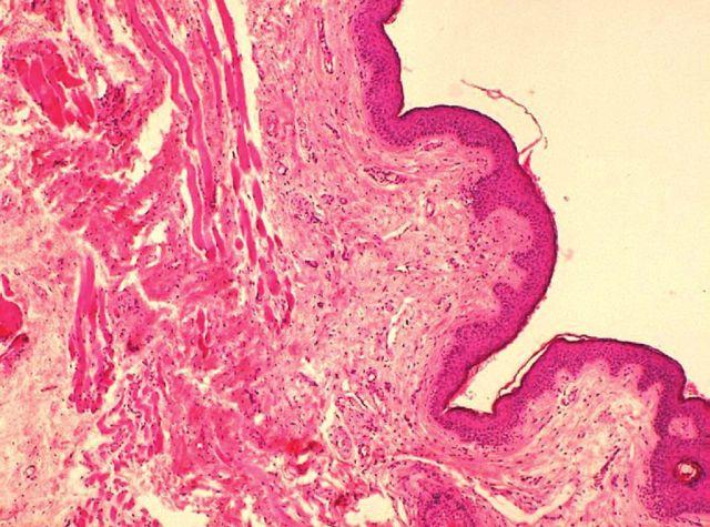 Projizvení a atrofie svalu ve víčku a novotvořené vazivo s drobnými cévami nespecifické granulační tkáně (barvení HE, zvětšení 100x)