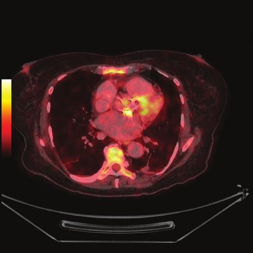 FDG PET/CT z 19. 10. 2012 2a - předozadní MIP, v okolí sleziny patrné drobné hyperaktivity - fraktury žeber (šipky) 2b - PET s korekcí na atenuaci, axiální řez srdcem v úrovni aortálního anulu (ve stejné rovině jako 1b), jsou patrné dva okrsky výrazněji zvýšené akumulace FDG v oblasti aortálního anulu (šipky) 2c - PET bez korekce na atenuaci, axiální řez ve stejné rovině jako 2b 2d - fúze PET/CT, axiální řez v rovině odpovídající 2b