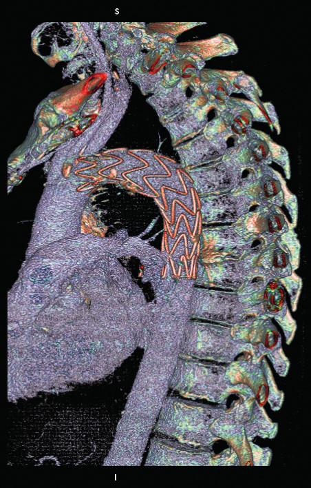 CTA obraz po prvotnej implantácii aortálneho stentgraftu.