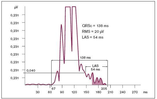 Pozdní potenciály. Celkové trvání komplexu QRS (QRSc) – potenciály začínají od 67. ms a končí ve 205. ms, celková doba je tedy 138 ms. RMS – relativní amplituda (efektivní hodnota) voltáže pozdních potenciálů v posledních 40 ms, od 165. ms do 205. ms (RMS40), činí 20 μV. LAS – délka trvání nízkoamplitudových signálů na konci komplexu QRS s iniciální hodnotou 40 μV je od 151. ms do 205. ms, což činí 54 ms; upraveno dle [110].