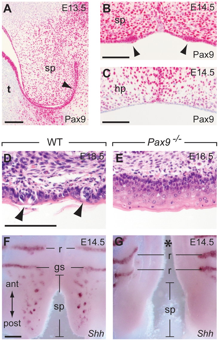 Pax9 is essential for taste placode formation in the soft palate.