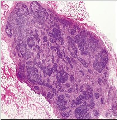 Tukovou tkání obklopená lumbální lymfatická uzlina se známkami atrofie, vazivově zesíleným pouzdrem s fibrotizací a histiocytózou splavů.