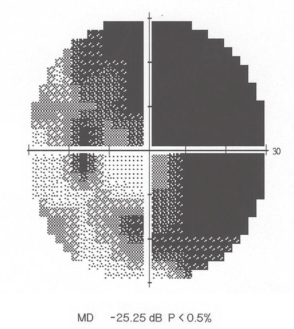 Perimetrie OL: Absolutní skotom, s výjimkou dolního temporálního kvadrantu, kde ještě přetrvává mírná citlivost v ZP