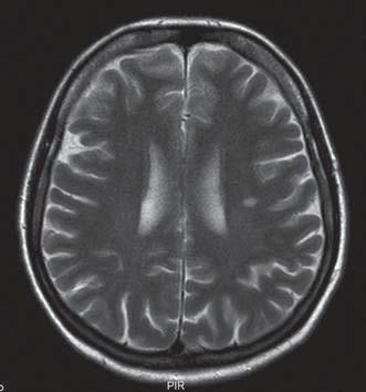 MR mozku – hypersignální ložisko velikosti 10 mm v bílé hmotě supratentoriálně na úrovní centrum semiovale vlevo v T2 obraze.