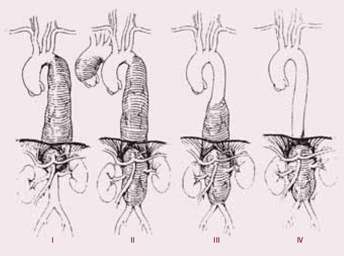 Crawfordova klasifikace aneuryzmat torakoabdominální aorty.