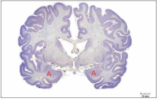 Poloha amygdal v řezu čelní rovinou mozku na úrovni chiasma opticum