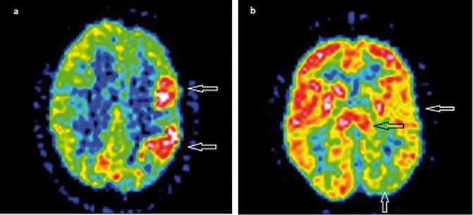"""<sup>18</sup>F-FDG PET u Rasmussenovej encefalitídy. Obr. 2a) """"Iktálny"""" hypermetabolizmus glukózy v hypometabolizme ľavej hemisféry (biele šípky) – PET u pacientky s frekventnými parciálnymi záchvatmi. Obr. 2b) Interiktálny hypometabolizmus celej ľavej hemisféry (biele šípky), hypometabolizmus v bazálnych gangliách a thalame vľavo (čierna šípka). Pozn.: Prezentované so súhlasom KNM LF UK a OUSA, Bratislava. Fig. 2. <sup>18</sup>F-FDG PET in Rasmussen's encephalitis. Fig. 2a) """"Ictal"""" glucose hypermetabolism in the hypometabolic left hemisphere (white arrows) – PET in a patient with frequent partial epileptic seizures. Fig. 2b) Interictal diff use hypometabolism of the left hemisphere (white arrows), hypometabolism in basal ganglia and thalamus left (black arrow). Note: With the agreement of KNM LFUK and OUSA, Bratislava."""