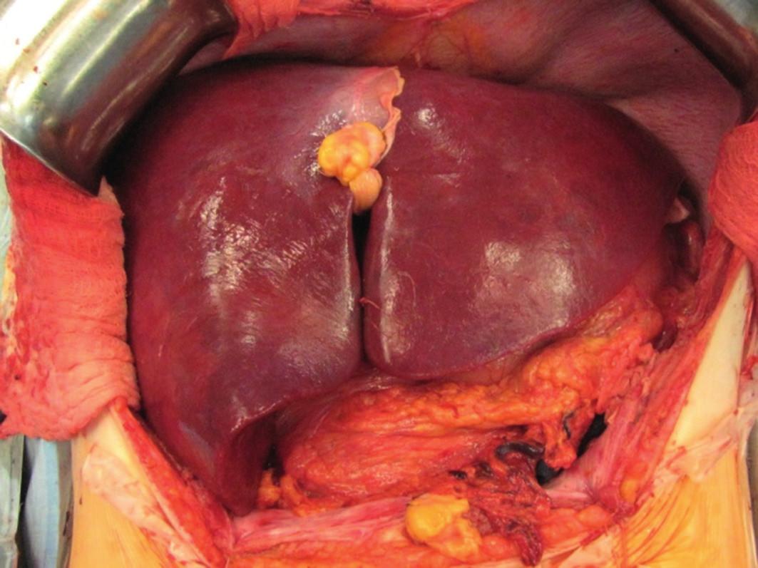 Transplantace jater - pohled na transplantát (štěp) po provedení všech cévních anastomóz.