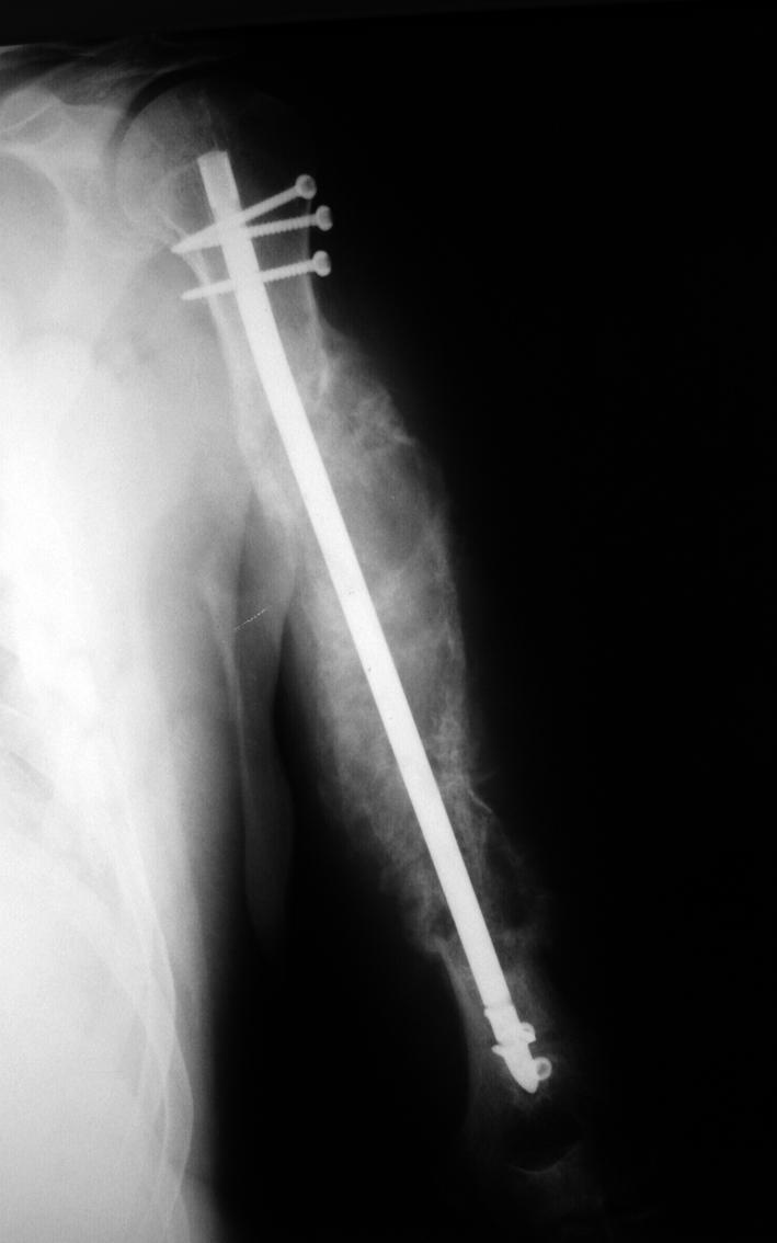 Rtg levého humeru v průběhu léčby lenalidomidem.