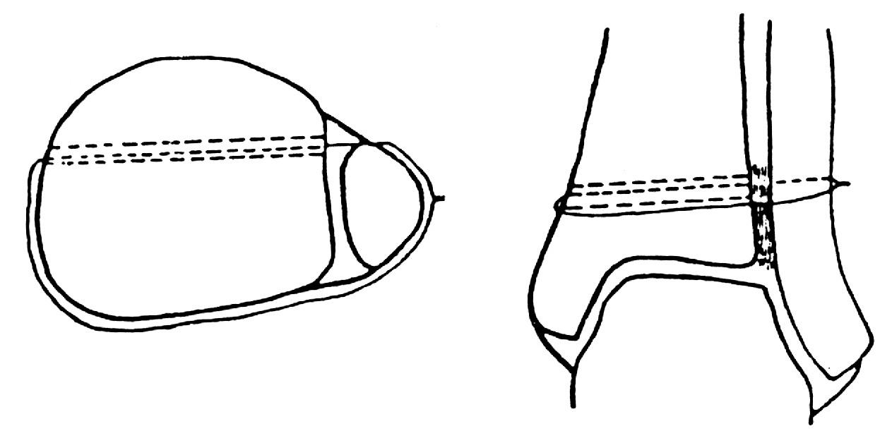 Mlčochova klička (Převzato [26])