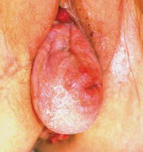 Prolaps děložní v oblasti apexu vaginy (střední kompartment). (foto z archivu W. Artibaniho)