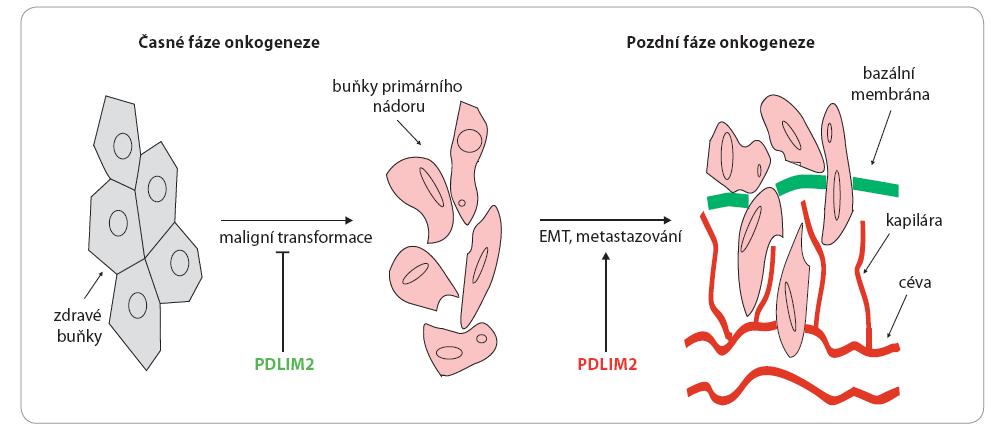 Duální role PDLIM2 v onkogenezi.