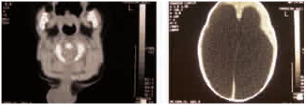 Pacientka 2, CT vyšetrenie. Okcipitocervikálna meningokéla s hydrocefalom, pri prijatí, pred operáciou.