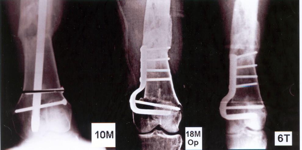 Obr. 6d-f e) detail distálního femuru s patrným valgózním postavením distálního fragmentu, f) varizační korekční osteotomie distálního femuru 18 měsíců po úrazu, po zhojení zlomeniny diafýzy, g) 6 týdnů po osteotomii, která se hojí bez komplikací, postavení v koleně je osově správné