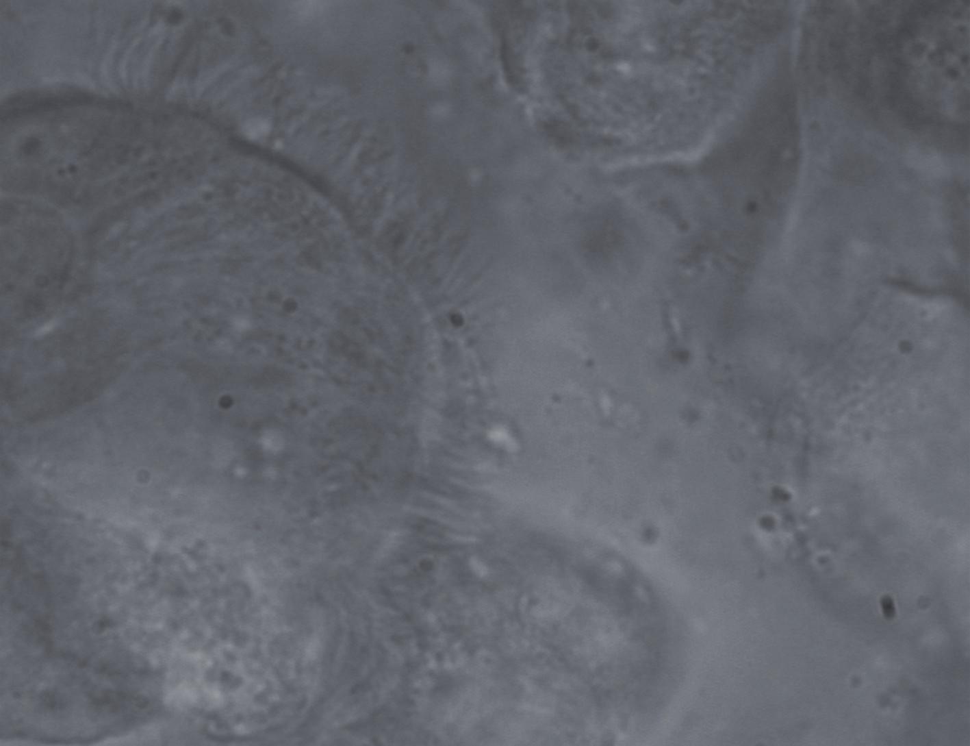 Několik respiračních epiteliálních buněk v 1 000násobném zvětšení při mikroskopickém vyšetření v zástinu. Dobře patrná je metachronně se pohybující ciliární vrstva (detailní a přesné hodnocení ciliárních parametrů z 5–7 míst vzorku trvá zhruba 20 min).
