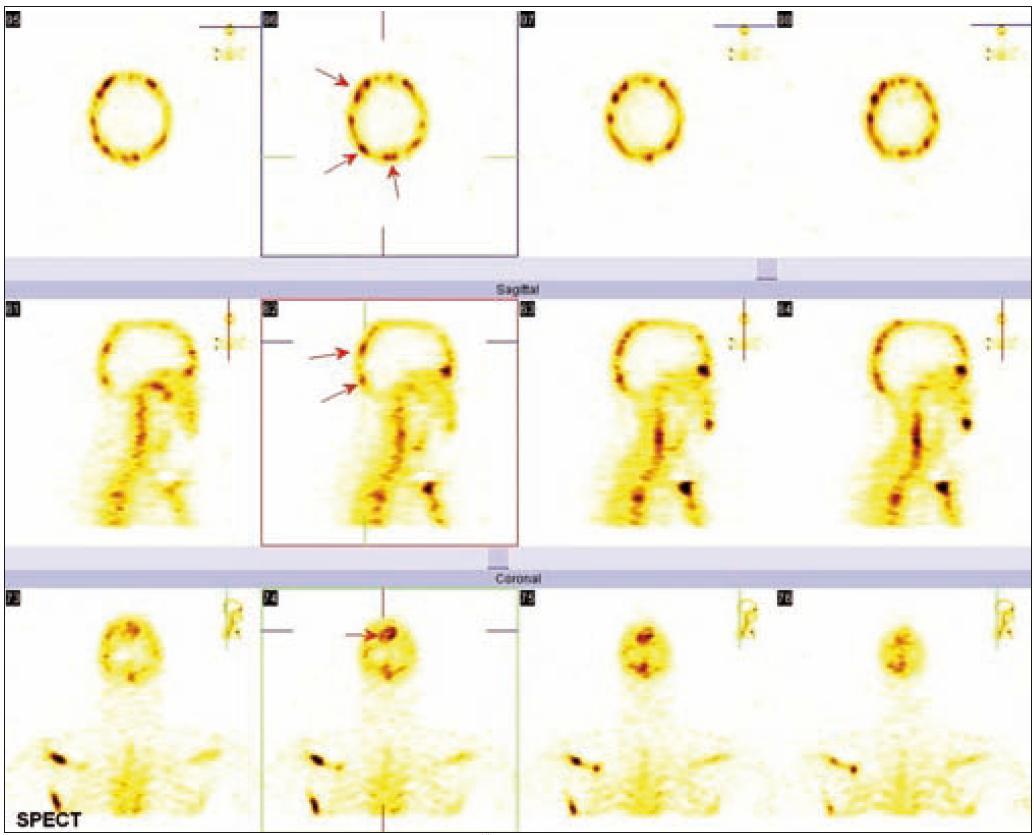 Podrobné zobrazení kalvy metodou SPECT. Šipkami jsou označena některá ložiska zvýšeného vychytávání radiofarmaka.