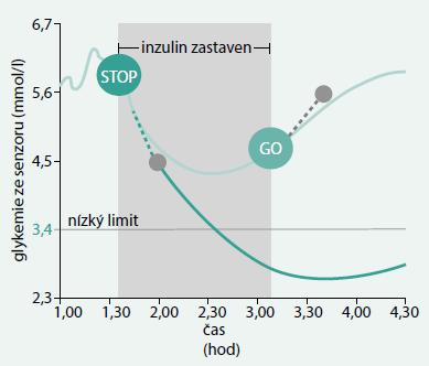 Princip prediktivního zastavení dávkování inzulinu u technologie PLGM