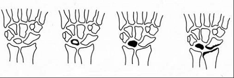 RTG klasifikácia morbus Kienbock podľa Decoulxa I.–IV. st. podľa stupňa kompresie lunáta a rozvoja artrotických zmien