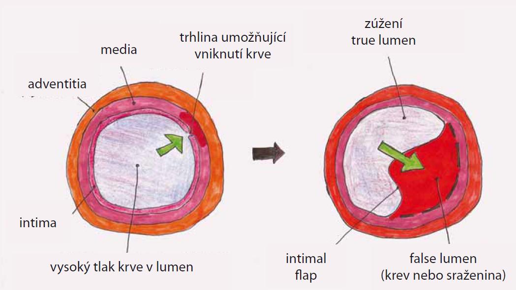 """Princip vzniku disekce aorty. Disekce se začíná ve stěně cévy šířit z oblasti primární trhliny """"intimal tear"""" se vznikem pravého """"true"""" a falešného """"false"""" lumen. Pravý a falešný kanál je od sebe oddělen membránou """"intimal flap""""."""