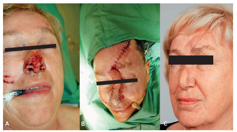 Fig. 1.1a, b, c. Case report of a tissue loss injury on the nose after a dog bite: a) image from injury, b) postoperative image after reconstruction of the nasal tip using paramedian forehead flap from the left, c) condition 1 month after detachment of the pedicle