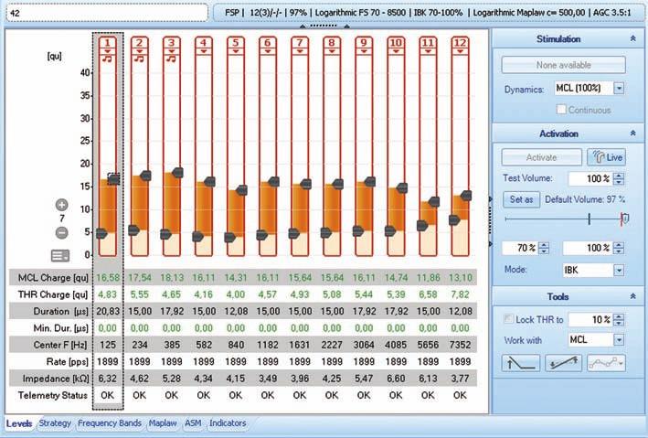 Ukázka nastavovacího prostředí programu MAESTRO 4.0 (fy MED-EL).