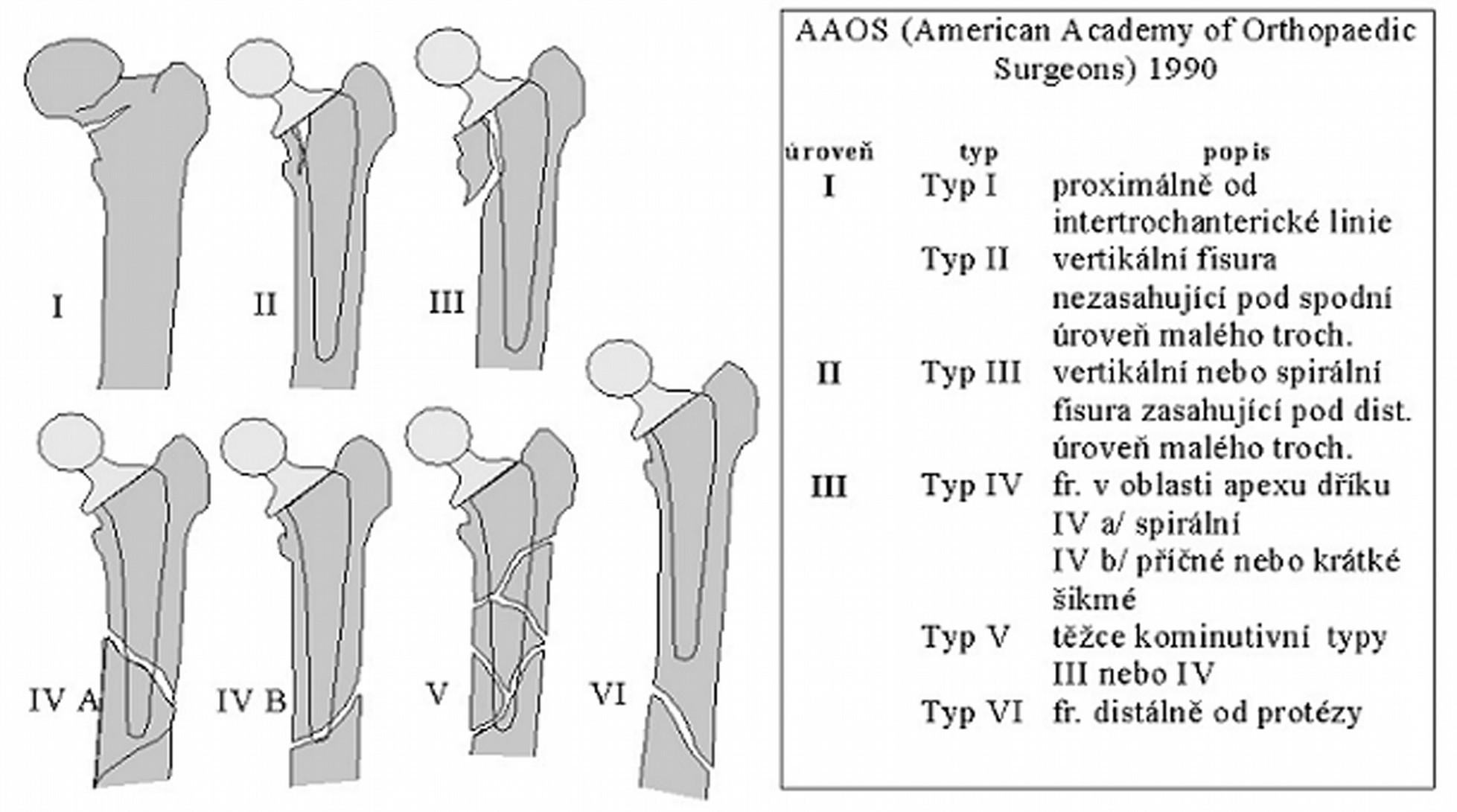 Schéma 1 Klasifikace podle AAOS z roku 1990