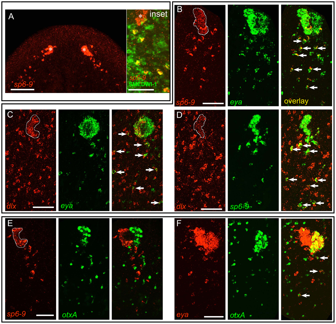 A population of mesenchymal cells posterior to the eye during regeneration expresses optic cup transcription factors.