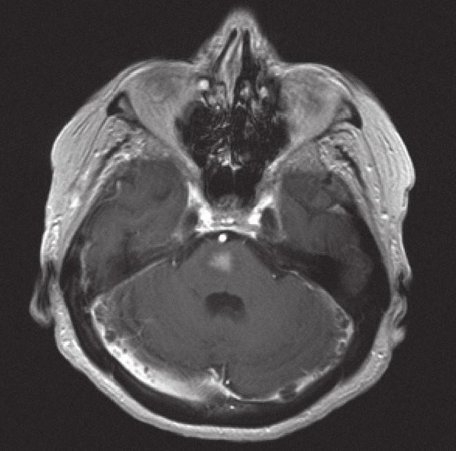Magnetická rezonance, SE MTC T1 s kontrastní látkou. Pacientka C. R. 1934, kontrastně se sytící infiltrát lymfomu v mozkovém kmeni zřetelně zmenšený po 10 dnech kortikoterapie ve srovnání se vstupním stavem na obr. 5.