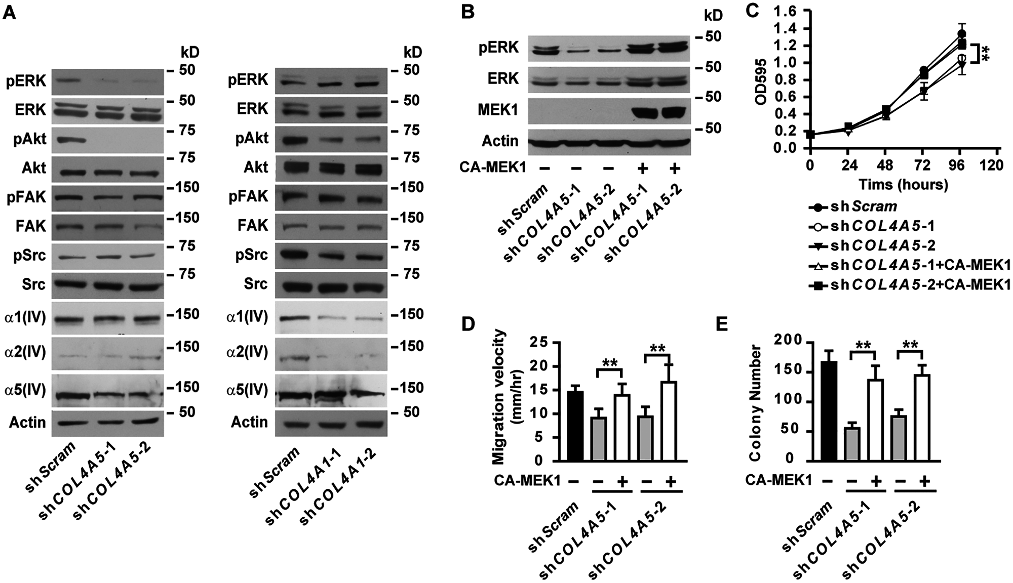 α5(IV), but not α1(IV), deficiency results in impaired activation of ERK.