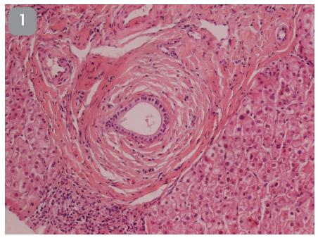 24-ročný muž s anamnézou ulceróznej kolitídy, s biochemickými známkami cholestázy a s pozitivitou sérových protilátok ANCA. Biopsia pečene. HE, 100x.