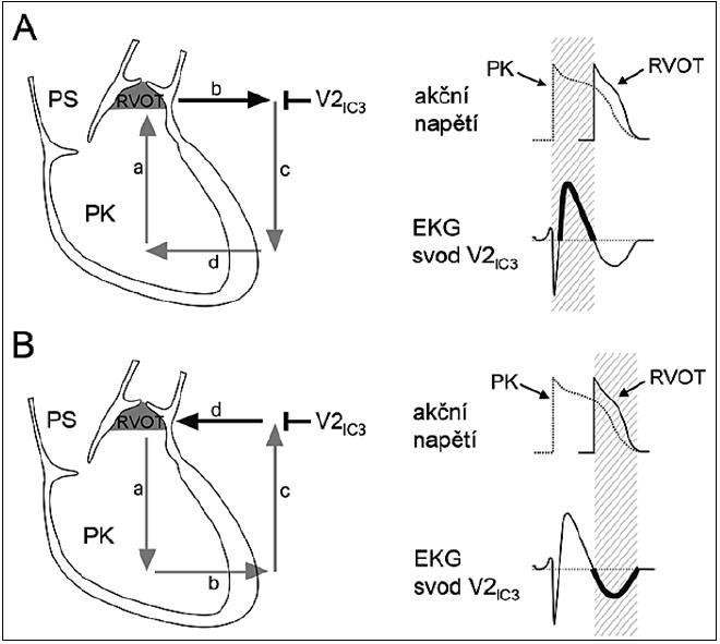Schematické znázornění depolarizační hypotézy vzniku arytmogenního substrátu u Brugada syndromu. Vysvětlení v textu. PS – pravá síň, PK – pravá komora, RVOT – right ventricular outflow tract, výtokový trakt pravé komory, V2<sub>IC3</sub> – hrudní svod V<sub>2</sub> umístěný nad RVOT. S dovolením převzato a upraveno z citace [27].