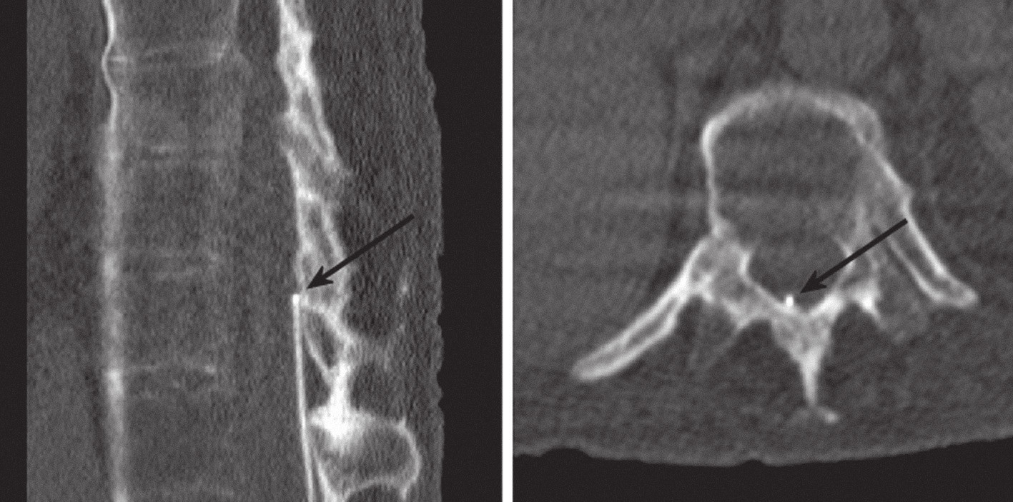 CT: katétr probíhá v epidurálním prostoru, hrot je při horním okraji Th 11 (označené šipkami). Sagitální řez po CT rekonstrukci (vlevo) a příčný řez (vpravo).