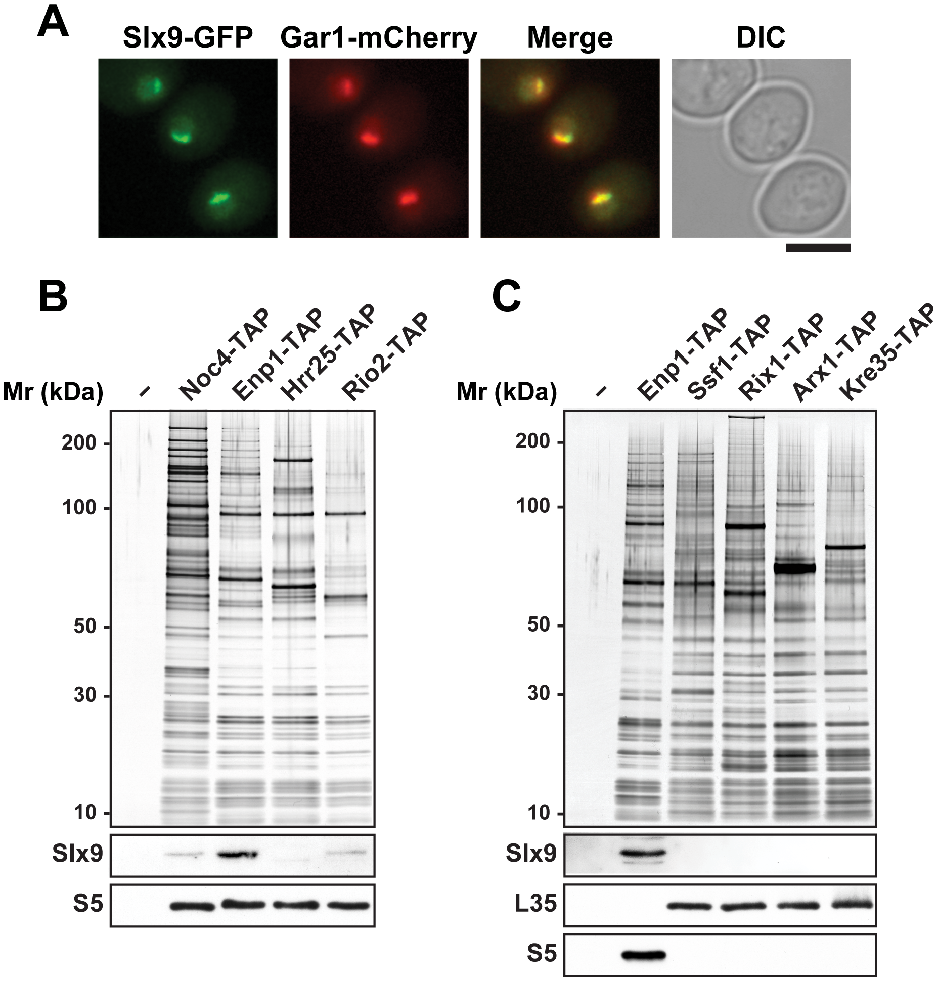 Slx9 associates with pre-ribosomal particles in the 40S maturation pathway.