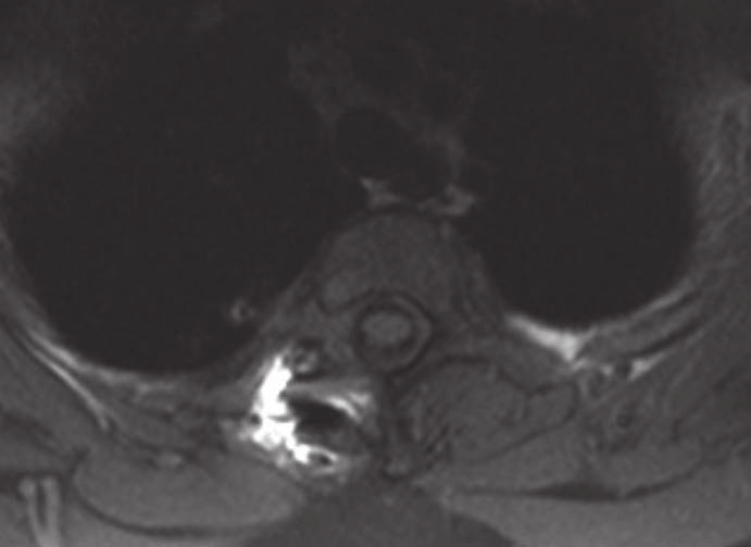 MR v axiální rovině, po operaci sutkovitého neurinomu Th2–Th3 vpravo (bez rezidua tumoru).