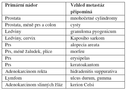 Kožní metastázy napodobující určitá onemocnění