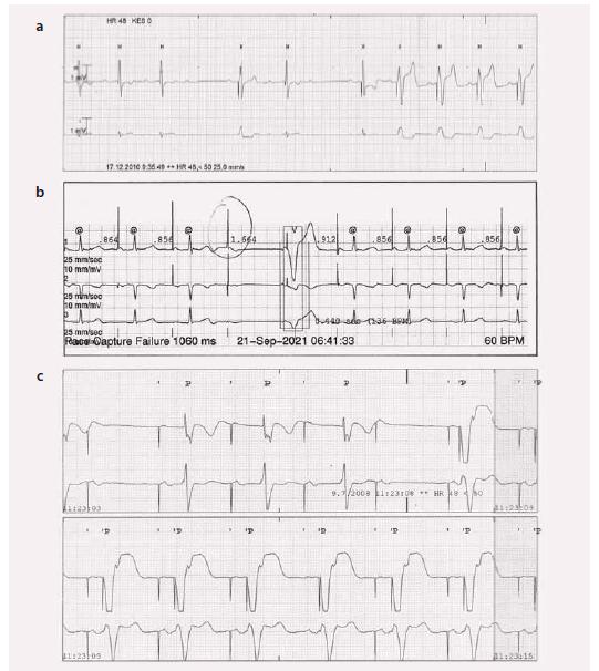 EKG u algoritmu na snížení komorové stimulace.