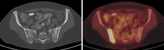 V CT obrazu jen naznačeno nevýrazné prořídnutí pravé lopaty kyčelní, ložisko ve skeletu vykazuje jednoznačně patologickou akumulaci FDG – osteolytická metastáza při diseminaci karcinomu levého prsu.