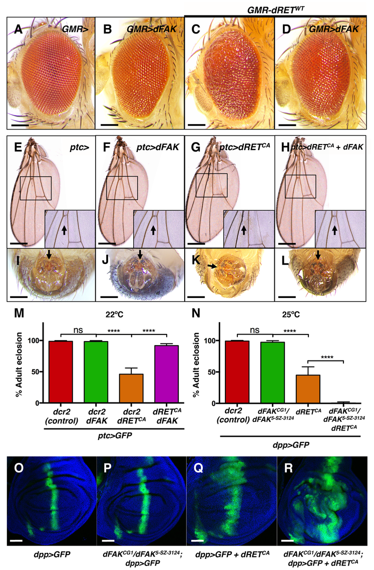 FAK suppresses RET-driven effects in different fly tissues.