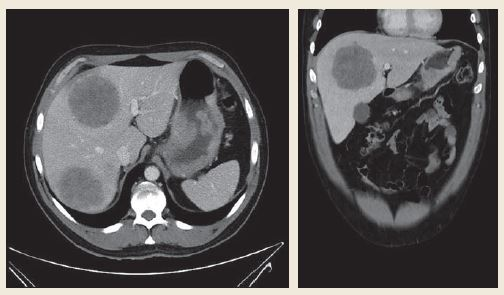 Tumor postihující zadní stěnu žaludku od úrovně kardie téměř po angulus, stěna rozšířená nepravidelně až na 30 mm, výrazná spádová lymfadenopatie – perigastricky zmnožené uzliny 8–17 mm. Vícečetná metastatická ložiska jater veli-kosti 40–85 mm. Fig. 2. A tumour affecting the posterior wall of the stomach from the level of cardia almost up to the angulus, the wall is irre-gularly extended to up to 30 mm, distinct catchment lymphadenopathy – next to the stomach multiplied nodules of 8–17 mm. Multiple metastatic foci sized 40–85 mm in the liver.