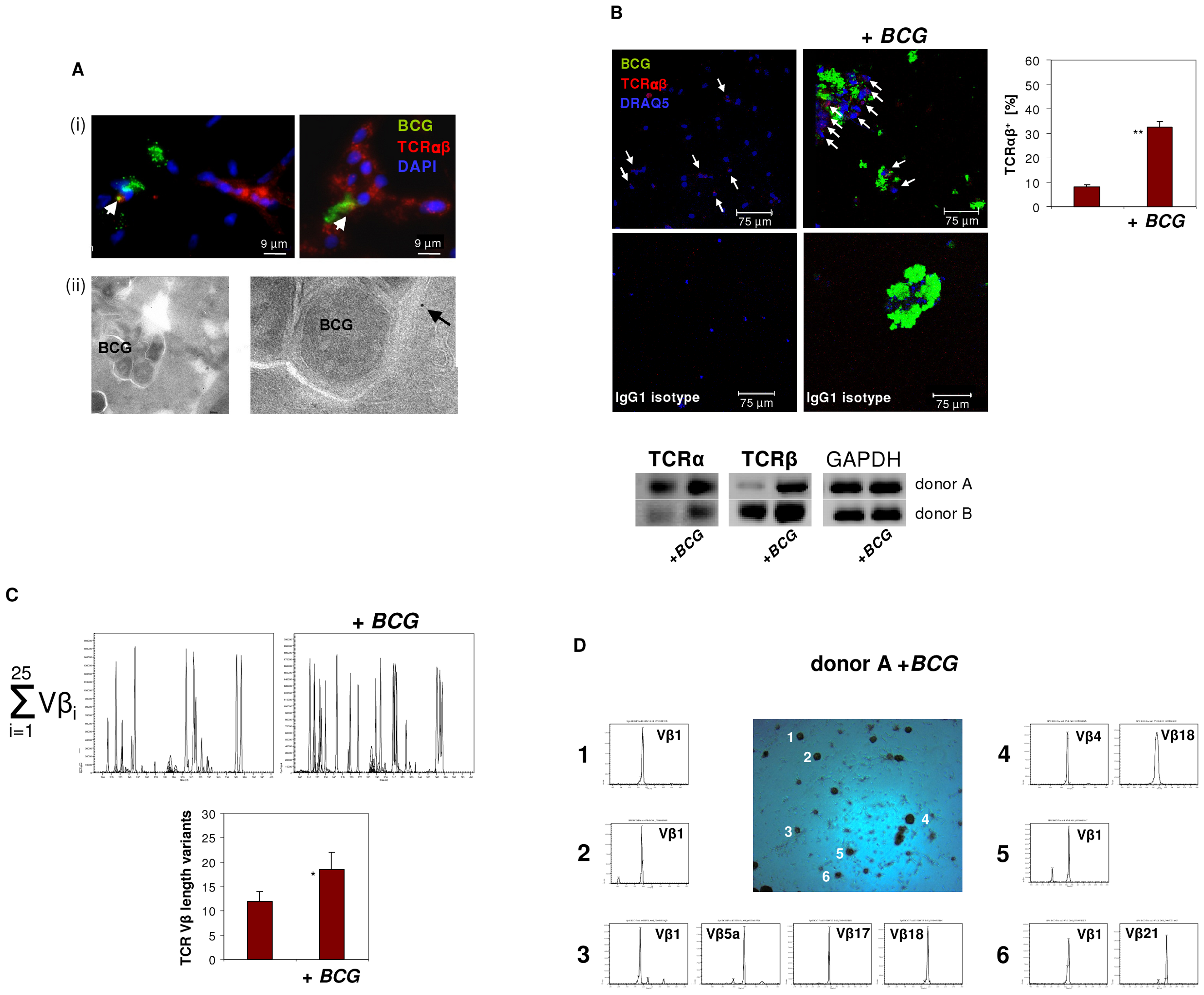 Infection of macrophages with <i>M. bovis BCG</i> induces TCRαβ expression <i>in vitro</i>.