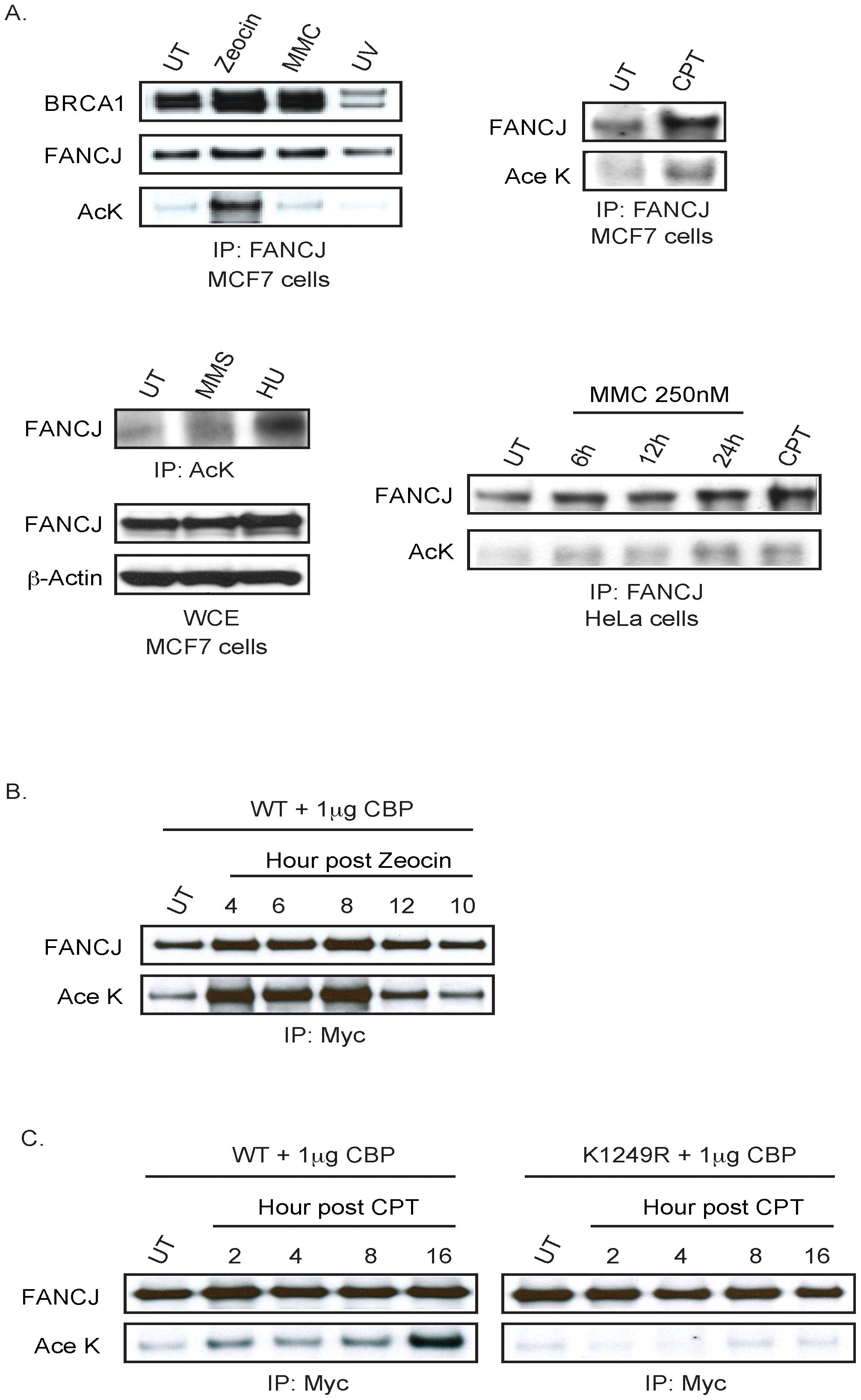 FANCJ acetylation is induced after DNA damage.