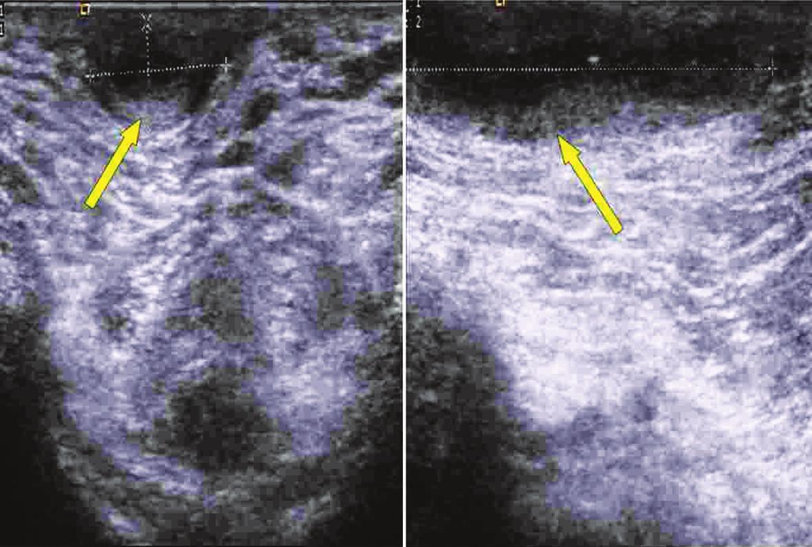 USG perianální krajiny s anální píštělí Fig. 3. Ultrasound examintion of perianal region with anal fistula