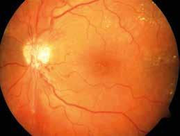 Proliferativní forma diabetické retinopatie