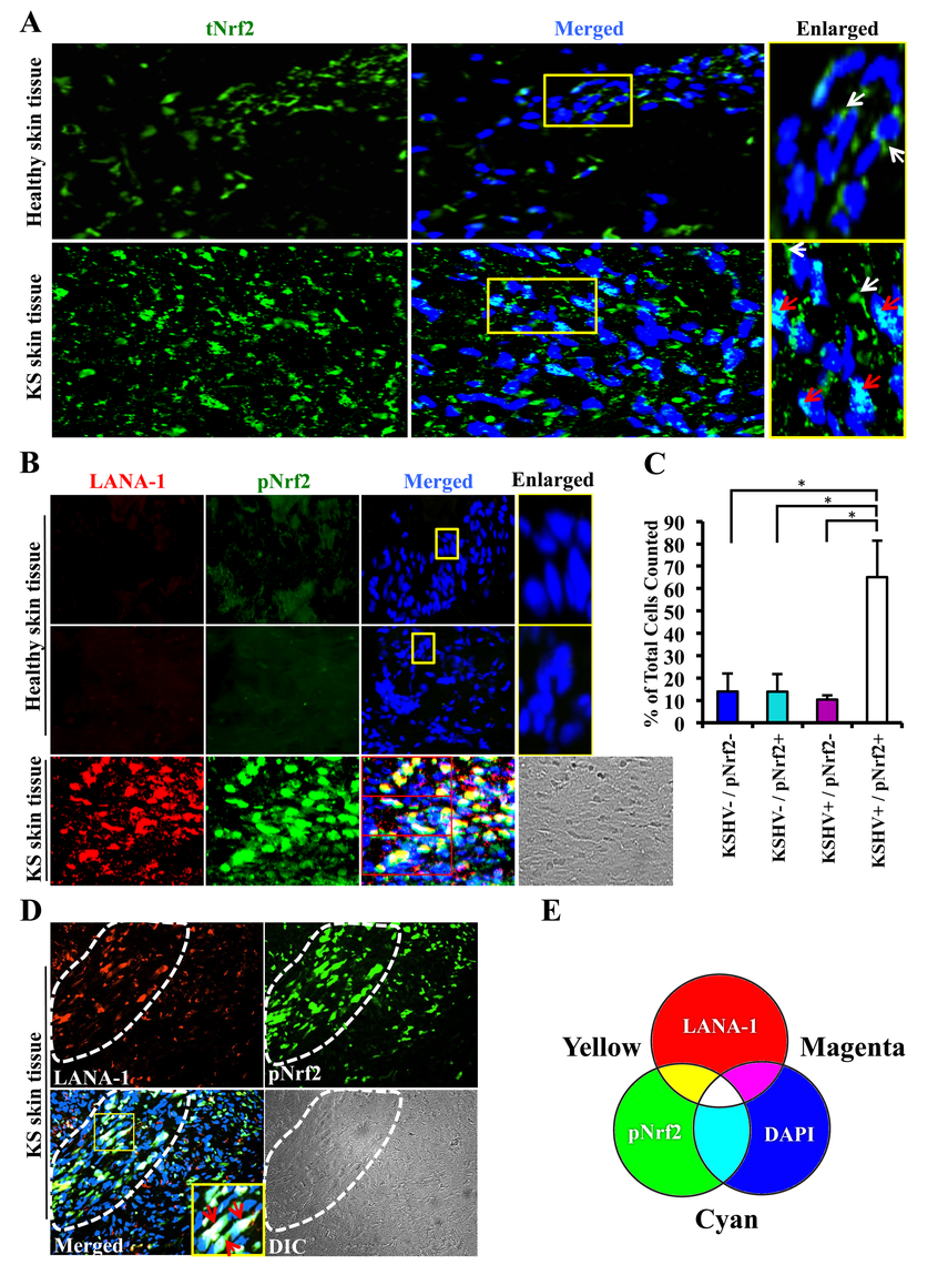 Immunofluorescence analysis of Nrf2 levels in Kaposi's sarcoma skin lesions.