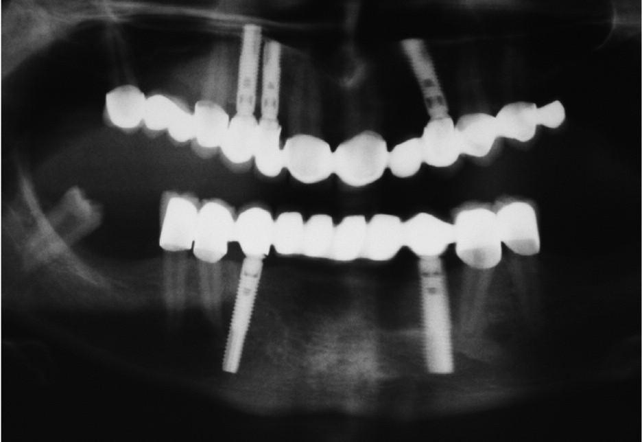 Stav z obrázků 7, 8 a 9 po 2 letech od implantace.
