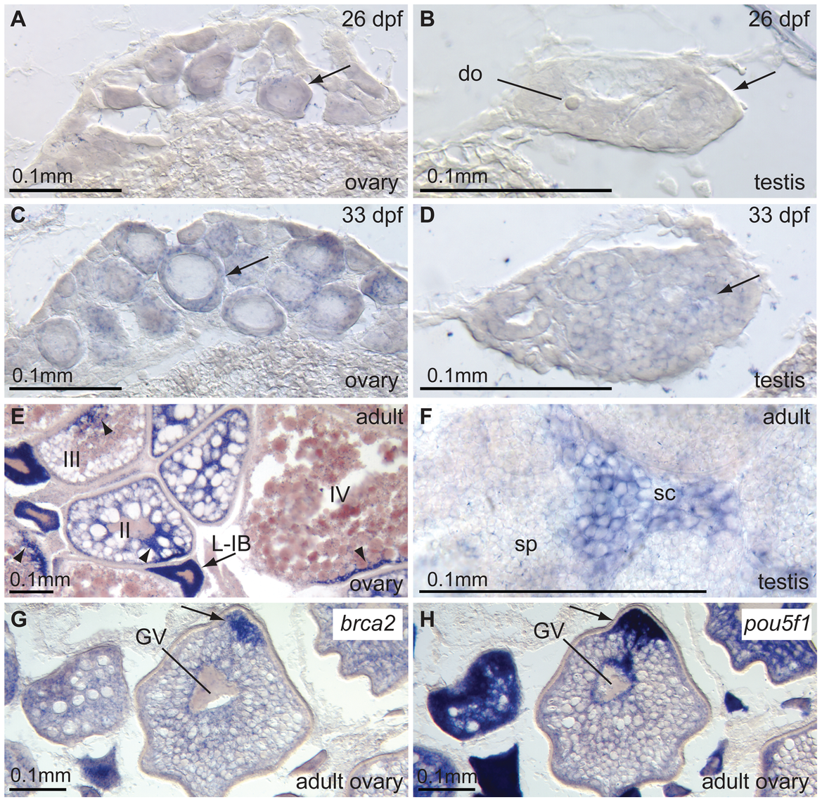 Expression of <i>brca2</i> in wild-type gonads.